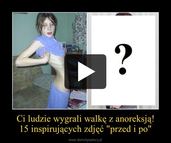 """Ci ludzie wygrali walkę z anoreksją!15 inspirujących zdjęć """"przed i po"""" –"""