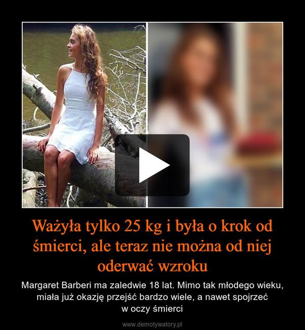 Ważyła tylko 25 kg i była o krok od śmierci, ale teraz nie można od niej oderwać wzroku – Margaret Barberi ma zaledwie 18 lat. Mimo tak młodego wieku, miała już okazję przejść bardzo wiele, a nawet spojrzećw oczy śmierci