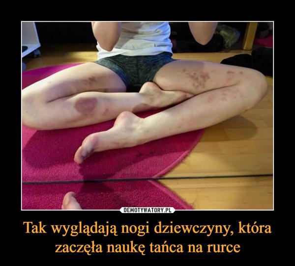 Tak wyglądają nogi dziewczyny, która zaczęła naukę tańca na rurce –