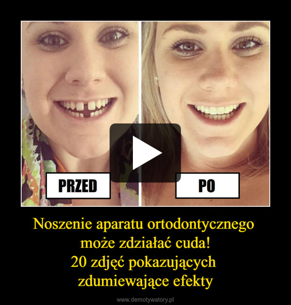 Noszenie aparatu ortodontycznego może zdziałać cuda!20 zdjęć pokazujących zdumiewające efekty –