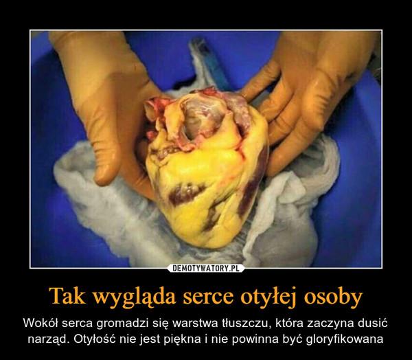 Tak wygląda serce otyłej osoby – Wokół serca gromadzi się warstwa tłuszczu, która zaczyna dusić narząd. Otyłość nie jest piękna i nie powinna być gloryfikowana