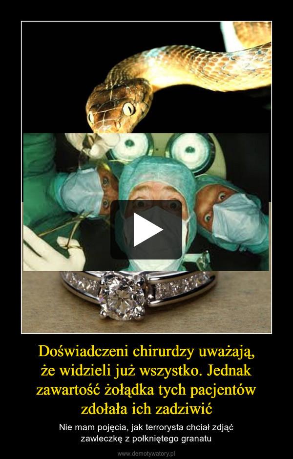 Doświadczeni chirurdzy uważają,że widzieli już wszystko. Jednak zawartość żołądka tych pacjentówzdołała ich zadziwić – Nie mam pojęcia, jak terrorysta chciał zdjąćzawleczkę z połkniętego granatu