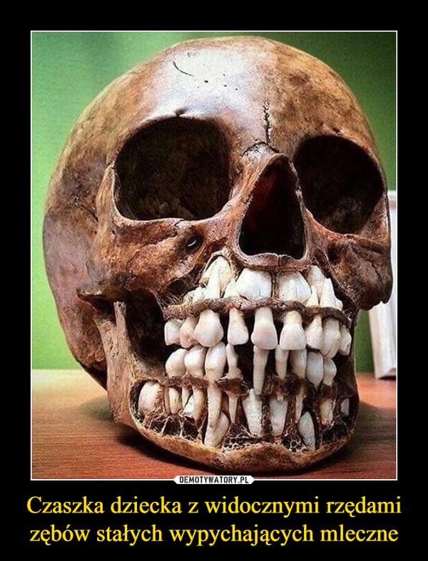 Czaszka dziecka z widocznymi rzędami zębów stałych wypychających mleczne –