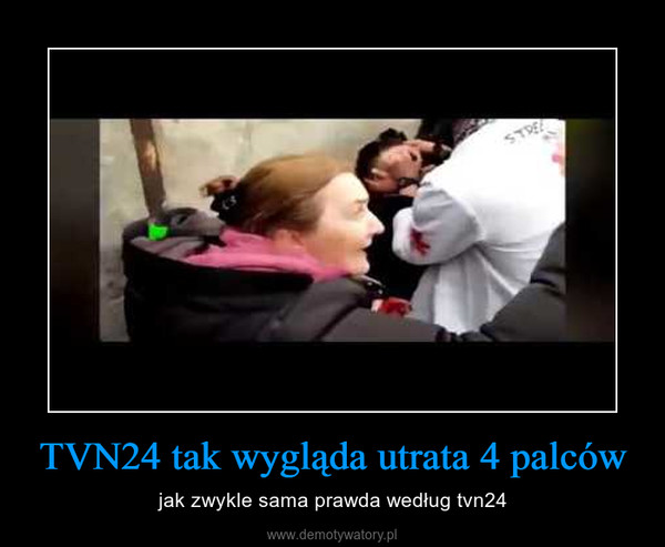 TVN24 tak wygląda utrata 4 palców – jak zwykle sama prawda według tvn24