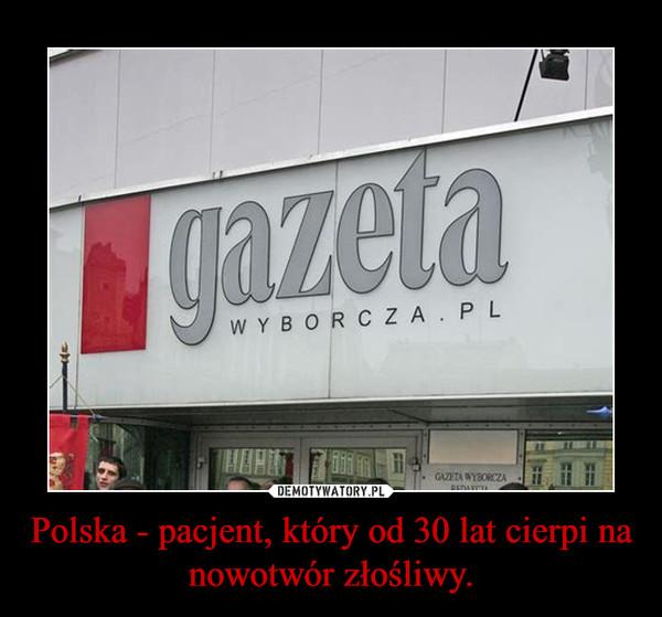 Polska - pacjent, który od 30 lat cierpi na nowotwór złośliwy. –