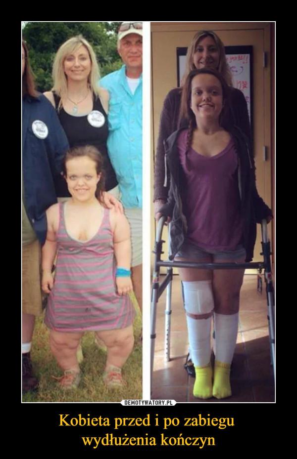 Kobieta przed i po zabiegu wydłużenia kończyn –