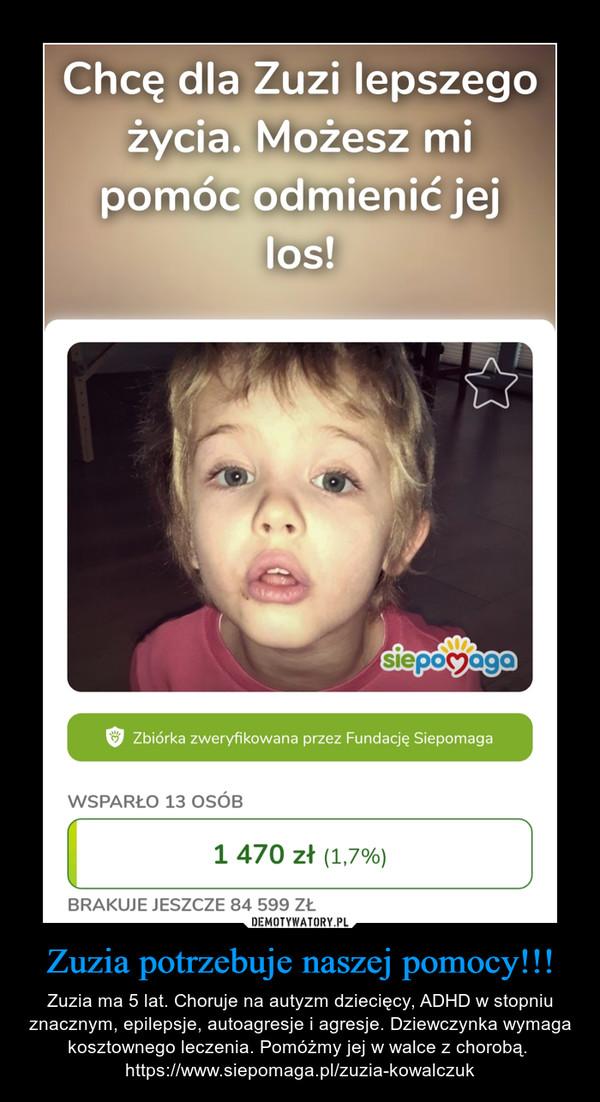 Zuzia potrzebuje naszej pomocy!!! – Zuzia ma 5 lat. Choruje na autyzm dziecięcy, ADHD w stopniu znacznym, epilepsje, autoagresje i agresje. Dziewczynka wymaga kosztownego leczenia. Pomóżmy jej w walce z chorobą.  https://www.siepomaga.pl/zuzia-kowalczuk