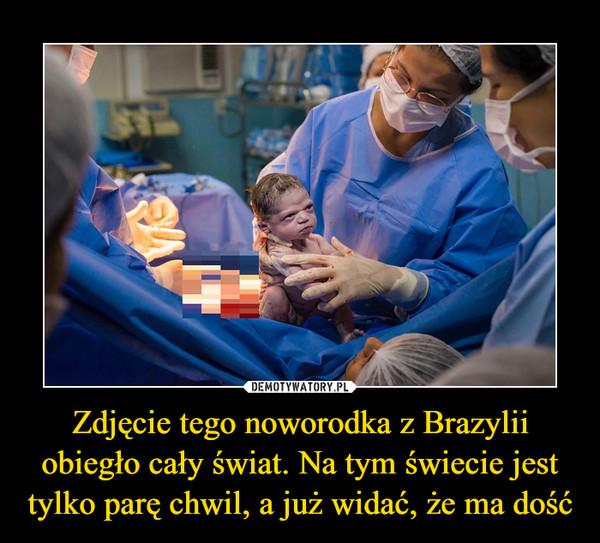 Zdjęcie tego noworodka z Brazylii obiegło cały świat. Na tym świecie jest tylko parę chwil, a już widać, że ma dość –