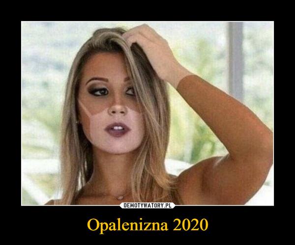 Opalenizna 2020 –