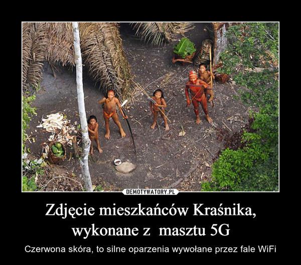 Zdjęcie mieszkańców Kraśnika, wykonane z  masztu 5G – Czerwona skóra, to silne oparzenia wywołane przez fale WiFi
