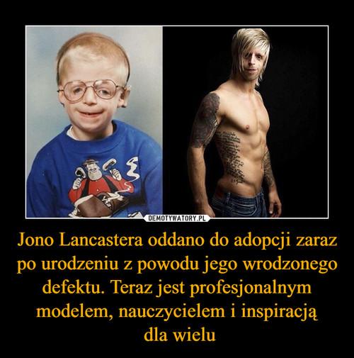 Jono Lancastera oddano do adopcji zaraz po urodzeniu z powodu jego wrodzonego defektu. Teraz jest profesjonalnym modelem, nauczycielem i inspiracją  dla wielu