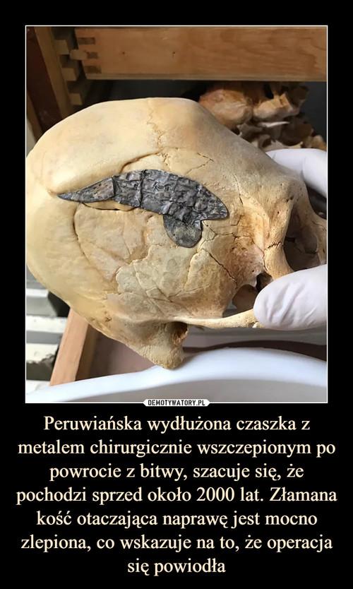 Peruwiańska wydłużona czaszka z metalem chirurgicznie wszczepionym po powrocie z bitwy, szacuje się, że pochodzi sprzed około 2000 lat. Złamana kość otaczająca naprawę jest mocno zlepiona, co wskazuje na to, że operacja się powiodła
