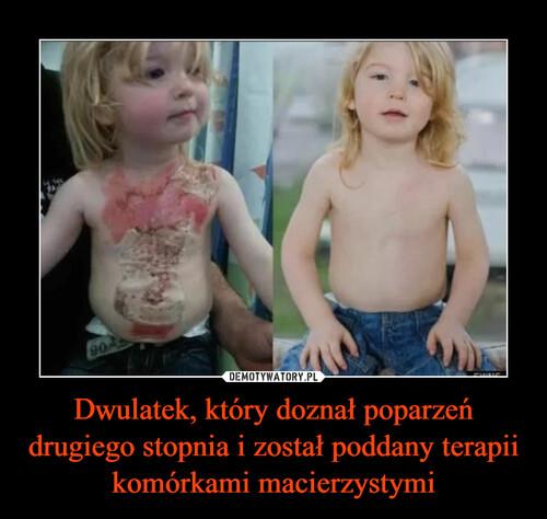 Dwulatek, który doznał poparzeń drugiego stopnia i został poddany terapii komórkami macierzystymi