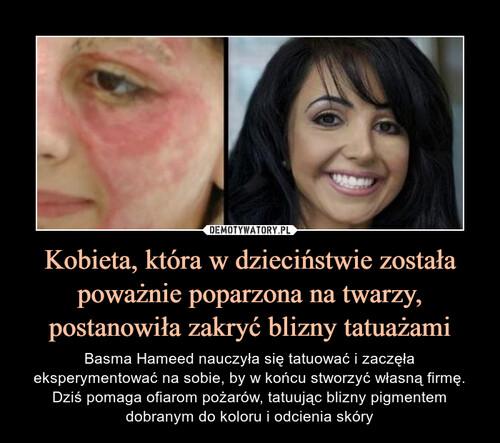 Kobieta, która w dzieciństwie została poważnie poparzona na twarzy, postanowiła zakryć blizny tatuażami