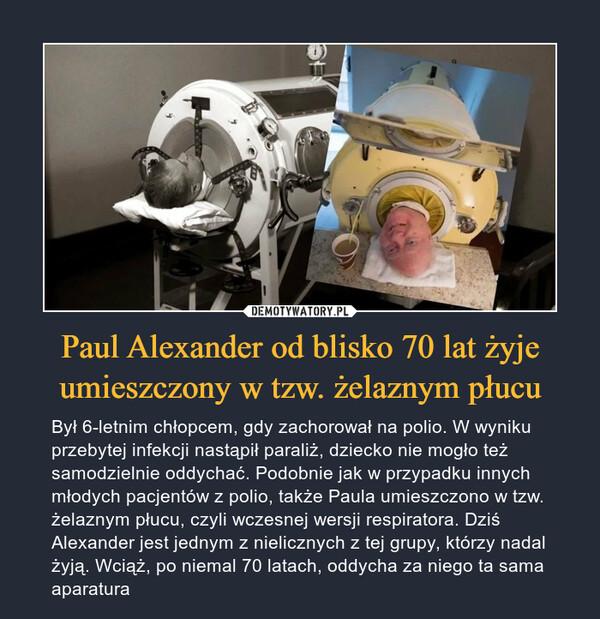 Paul Alexander od blisko 70 lat żyje umieszczony w tzw. żelaznym płucu – Był 6-letnim chłopcem, gdy zachorował na polio. W wyniku przebytej infekcji nastąpił paraliż, dziecko nie mogło też samodzielnie oddychać. Podobnie jak w przypadku innych młodych pacjentów z polio, także Paula umieszczono w tzw. żelaznym płucu, czyli wczesnej wersji respiratora. Dziś Alexander jest jednym z nielicznych z tej grupy, którzy nadal żyją. Wciąż, po niemal 70 latach, oddycha za niego ta sama aparatura